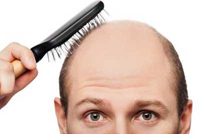 השתלת שיער